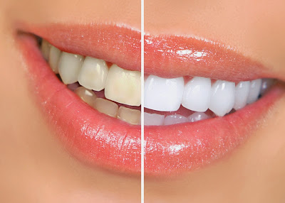 5 Home Remedies For Teeth Whitening